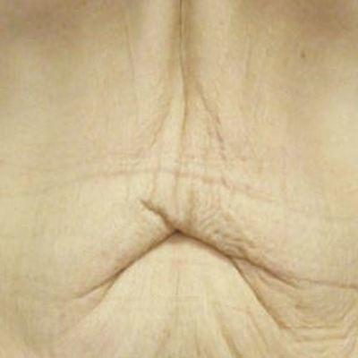 Schoonheidssalon Evita  - Medical Celu system®